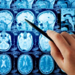 Brain Injury and Brain Scans after Accidents in Ohio